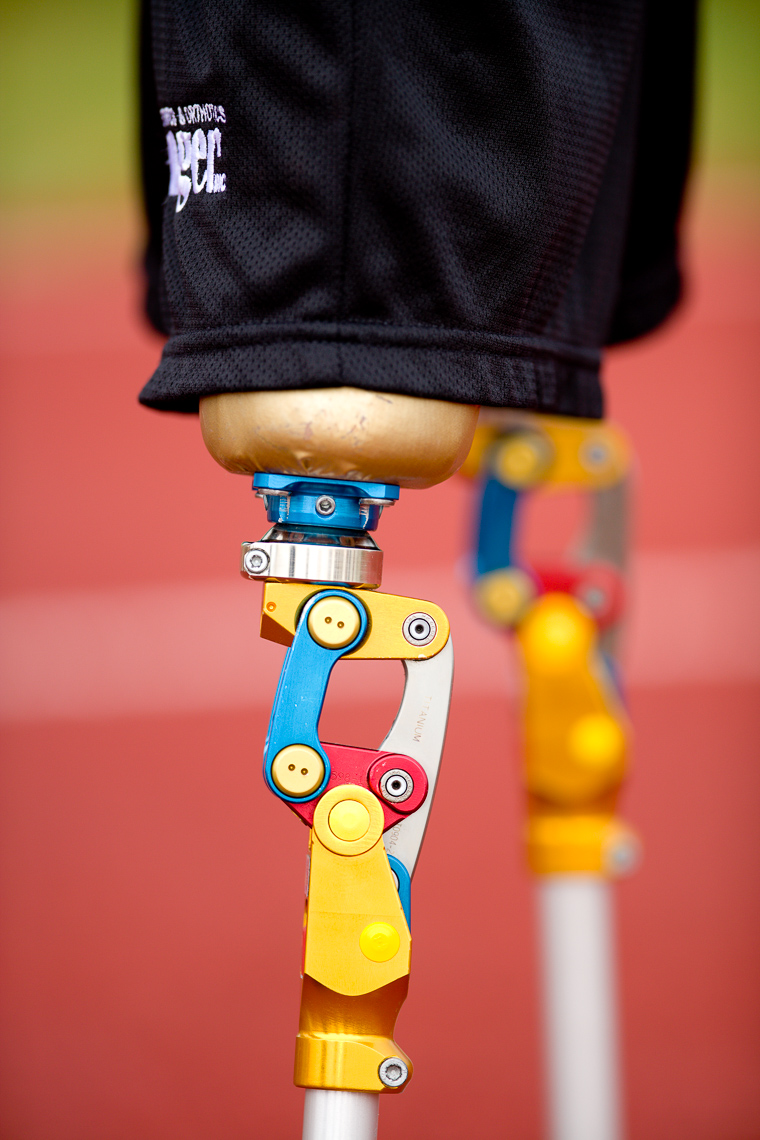 Sports Photo of Amputated Legs on Track